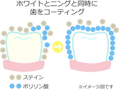 ホワイトとニングと同時に歯をコーディング
